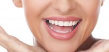 Kit blanchiment des dents, pour retrouver un sourir de déesse rapidement