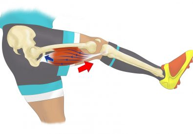 images2contracture-du-biceps-3.jpg