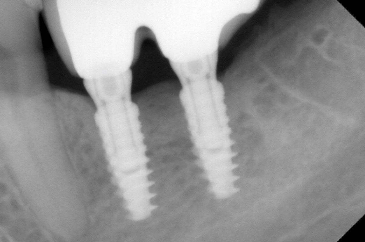 images2implant-dentaire-30.jpg