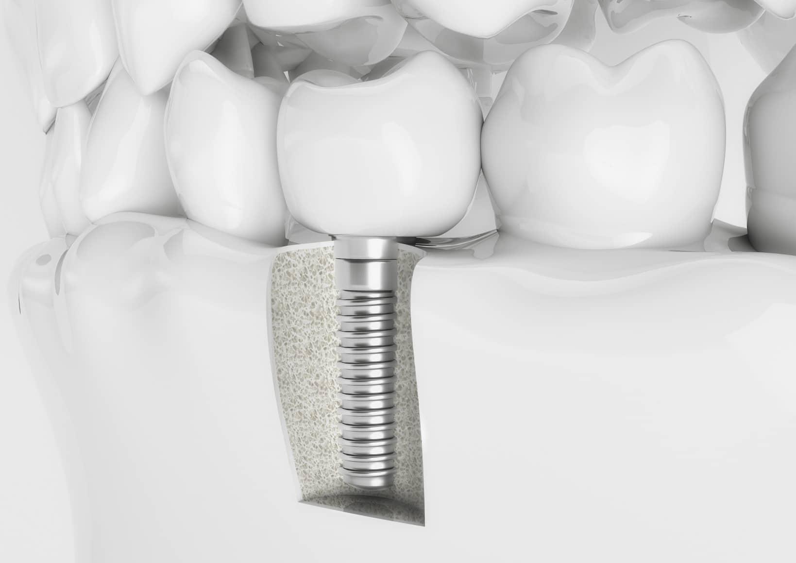 Est-ce que les visites des enfants chez le dentiste sont prises en charge?